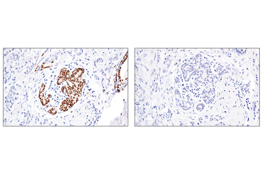 Immunohistochemical analysis of paraffin-embedded human ductal breast carcinoma using Sox10 (E6B6I) XP<sup>®</sup> Rabbit mAb (left) compared to concentration-matched Rabbit (DA1E) mAb IgG XP<sup>®</sup> Isotype Control #3900 (right).