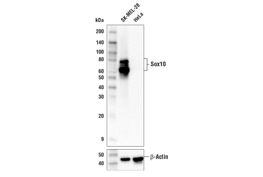 Western blot analysis of extracts from SK-MEL-28 and HeLa cells using Sox10 (E6B6I) XP<sup>®</sup> Rabbit mAb (upper) and β-Actin (D6A8) Rabbit mAb #8457 (lower). As expected, HeLa is low or negative for Sox10 expression.