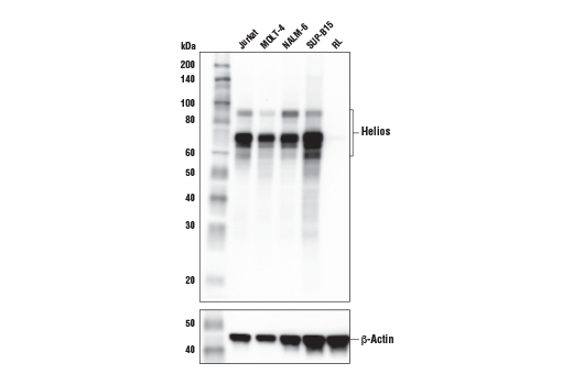 Western blot analysis of extracts from various cell lines using Helios (E4L5U) Rabbit mAb (upper) or β-Actin (D6A8) Rabbit mAb #8457 (lower). As expected, Helios protein is not expressed in RL-7 cells.