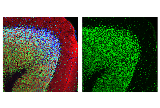Confocal immunofluorescent analysis of mouse brain using NeuN (E4M5P) Mouse mAb (green) and Phospho-Tau (Thr205) (E7D3E) Rabbit mAb (Alexa Fluor<sup>®</sup> 647 Conjugate) #53001 (red). Samples were mounted in ProLong<sup>®</sup> Gold Antifade Reagent with DAPI #8961 (blue).
