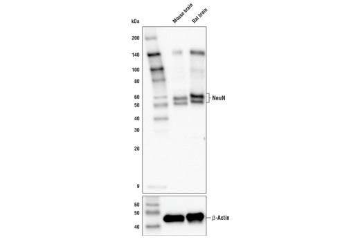 Western blot analysis of extracts from mouse and rat brain tissue using NeuN (E4M5P) Mouse mAb (upper) and β-Actin (D6A8) Rabbit mAb #8457 (lower).