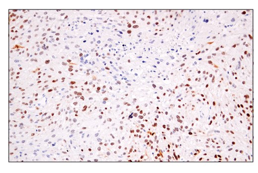 Immunohistochemical analysis of paraffin-embedded human gastrointestinal stromal tumor using p14 ARF (E3X6D) Rabbit mAb.