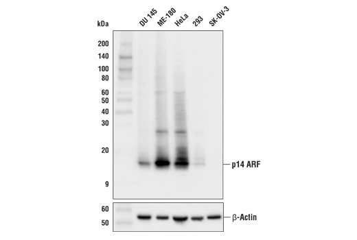 Western blot analysis of extracts from various cell lines using p14 ARF (E3X6D) Rabbit mAb (upper) or β-Actin (D6A8) Rabbit mAb #8457 (lower).