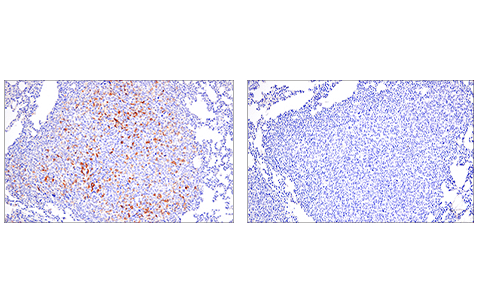 Immunohistochemical analysis of paraffin-embedded 4T1 metastatic tumor in mouse lung using PD-L2 (D6L5A) Rabbit mAb (left) compared to concentration-matched Rabbit (DA1E) mAb IgG XP<sup>® </sup>Isotype Control #3900 (right).