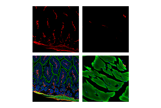 Confocal immunofluorescent analysis of mouse small intestine (left) and skeletal muscle (right) using α-Smooth Muscle Actin (D4K9N) XP<sup>®</sup> Rabbit mAb (Alexa Fluor<sup>®</sup> 647 Conjugate) (red). Actin filaments were labeled with DyLight™ 554 Phalloidin #13054 (green pseudocolor). Samples were mounted in ProLong<sup>®</sup> Gold Antifade Reagent with DAPI #8961 (blue).