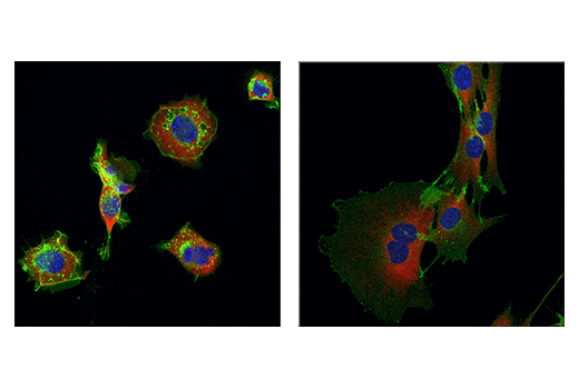 Immunofluorescence Image 3: NCAM1 (CD56) (E7X9M) XP® Rabbit mAb