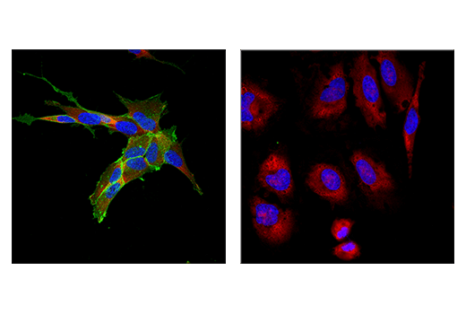 Immunofluorescence Image 2: NCAM1 (CD56) (E7X9M) XP® Rabbit mAb