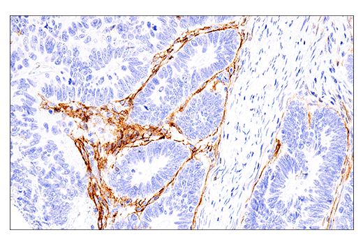 Image 14: Human Immune Cell Phenotyping IHC Antibody Sampler Kit
