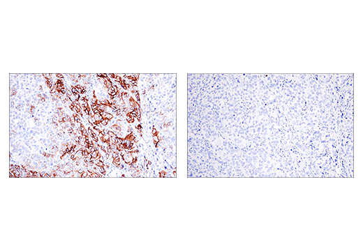 Immunohistochemical analysis of paraffin-embedded human ductal breast carcinoma using NCAM1 (CD56) (E7X9M) XP<sup>®</sup> Rabbit mAb (left) compared to concentration-matched Rabbit (DA1E) mAb IgG XP<sup>®</sup> Isotype Control #3900 (right).