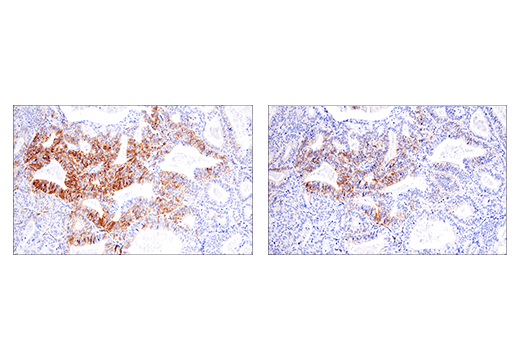 Immunohistochemical analysis of paraffin-embedded endometrioid adenocarcinoma using NCAM1 (CD56) (E7X9M) XP<sup>®</sup> Rabbit mAb (left) or NCAM (CD56) (123C3) Mouse mAb #3576 (right). These two antibodies detect independent, unique epitopes on human NCAM1. The similar staining patterns obtained with both antibodies help to confirm the specificity of the staining.