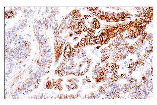 Image 69: Human Immune Cell Phenotyping IHC Antibody Sampler Kit