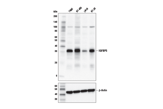 Western blot analysis of extracts from various cell lines using IGFBP5 Antibody (upper) and β-Actin (D6A8)<sup> </sup>Rabbit mAb #8457 (lower).