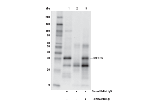 Immunoprecipitation of IGFBP5 protein from LN18 cell extracts. Lane 1 is 10% input, lane 2 is Normal Rabbit IgG #2729, and lane 3 is IGFBP5 Antibody. Western blot analysis was performed using IGFBP5 Antibody. Mouse Anti-rabbit IgG (Conformation Specific) (L27A9) mAb (HRP Conjugate) #5127 was used as a secondary antibody.