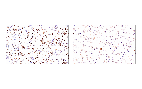 Immunohistochemical analysis of paraffin-embedded 293T cell pellet (left, high-expressing) or SK-MEL-28 cell pellet (right, low-expressing) using Geminin (E5Q9S) XP<sup>®</sup> Rabbit mAb.