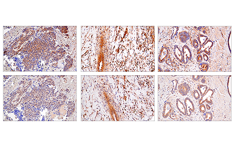 Immunohistochemical analysis of paraffin-embedded human colon carcinoma (left), squamous cell lung carcinoma (middle) or esophageal carcinoma (right) using RIP (E8S7U) XP<sup>®</sup> Rabbit mAb (top) or RIP Rabbit mAb (bottom). These two antibodies detect independent, unique epitopes on human RIP. The similar staining patterns obtained with both antibodies help to confirm the specificity of the staining.