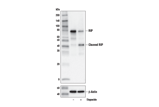 Western blot analysis of Jurkat cells, untreated (-) or treated with Etoposide #2200 (25 μM, 20 hr; +), using RIP (E8S7U) XP<sup>®</sup> Rabbit mAb (upper) or β-Actin (D6A8) Rabbit mAb (lower).