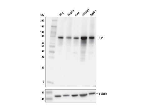 Western blot analysis of extracts from various cell lines using RIP (E8S7U) XP<sup>®</sup> Rabbit mAb (upper) or β-Actin (D6A8) Rabbit mAb #8457 (lower).