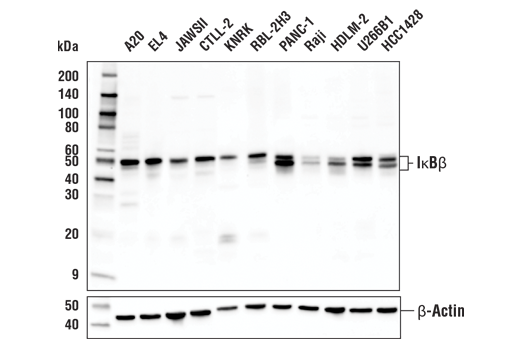 Western blot analysis of extracts from various cell lines using IκBβ (D1T3Z) Rabbit mAb (upper) or β-Actin (D6A8) Rabbit mAb #8457 (lower).