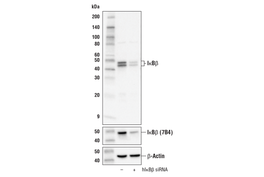 Western blot analysis of extracts from 293T cells, mock transfected (-) or transfected with human IκBβ siRNA (hIκBβ siRNA; +), using IκBβ (D1T3Z) Rabbit mAb (upper), IκBβ (7B4) Mouse mAb #8635 (middle), or β-Actin (D6A8) Rabbit mAb #8457 (lower).