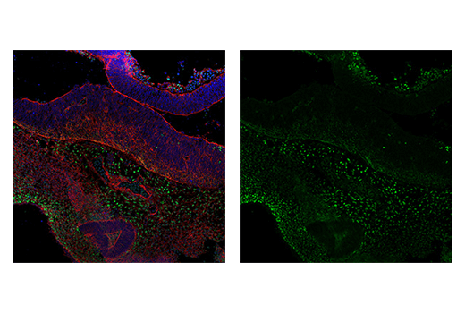Immunofluorescence Image 5: TWIST1 (E7E2G) Rabbit mAb (IF Formulated)