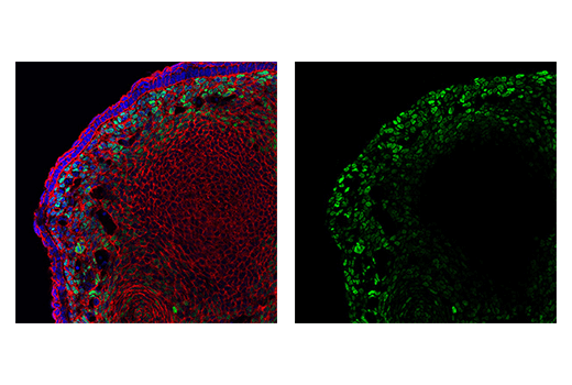 Immunofluorescence Image 6: TWIST1 (E7E2G) Rabbit mAb (IF Formulated)