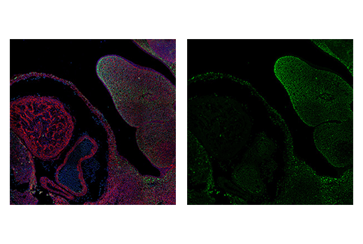 Immunofluorescence Image 4: TWIST1 (E7E2G) Rabbit mAb (IF Formulated)
