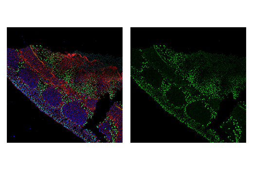 Immunofluorescence Image 3: TWIST1 (E7E2G) Rabbit mAb (IF Formulated)