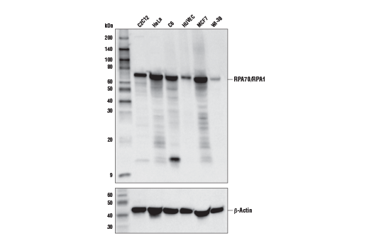 Western blot analysis of extracts from various cell lines using RPA70/RPA1 (E7T4Y) Rabbit mAb (upper) or β-Actin (D6A8) Rabbit mAb #8457 (lower).