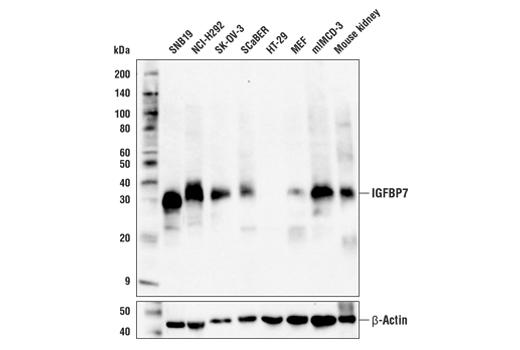 Monoclonal Antibody - IGFBP7 (E8R2V) Rabbit mAb - Western Blotting, UniProt ID Q16270, Entrez ID 3490 #64563