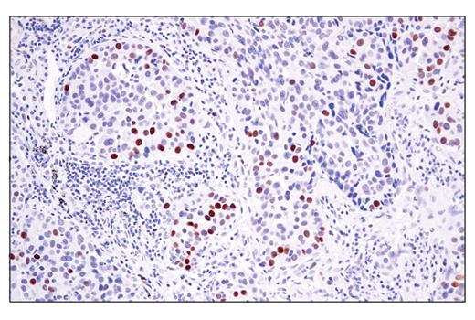 Monoclonal Antibody - ATAD2 (E8Y2K) Rabbit mAb, UniProt ID Q6PL18, Entrez ID 29028 #78568