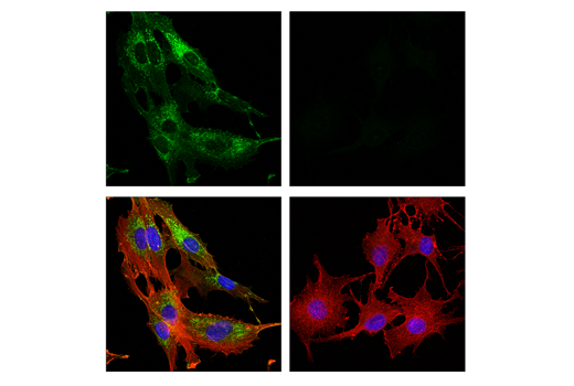 Confocal immunofluorescent analysis of U-138 MG cells (left, positive) or SK-MEL-28 cells (right, negative) using FAP (E1V9V) Rabbit mAb (green) and β-Actin (8H10D10) Mouse mAb #3700 (red). Samples were mounted in ProLong<sup>®</sup> Gold Antifade Reagent with DAPI #8961 (blue).