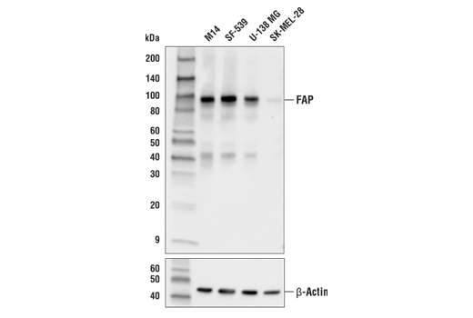 Western blot analysis of extracts from various cell lines using FAP (E1V9V) Rabbit mAb (upper) or β-Actin (D6A8) Rabbit mAb #8457 (lower).