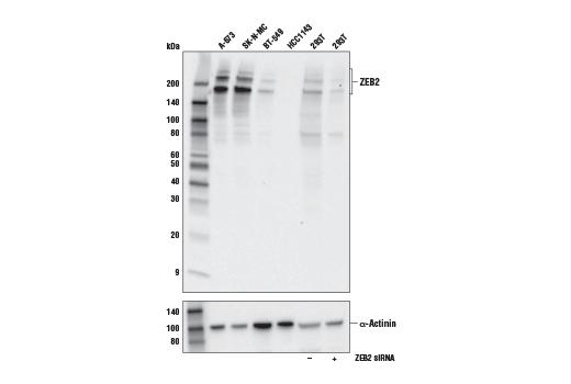 Monoclonal Antibody - ZEB2 (E6U7Z) Rabbit mAb - Western Blotting, UniProt ID O60315, Entrez ID 9839 #97885