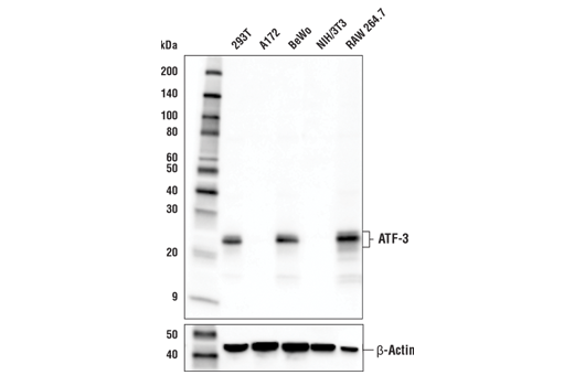 Western blot analysis of extracts from various cell lines using ATF-3 (E9J4N) Rabbit mAb (upper) or β-Actin (D6A8) Rabbit mAb #8457 (lower).