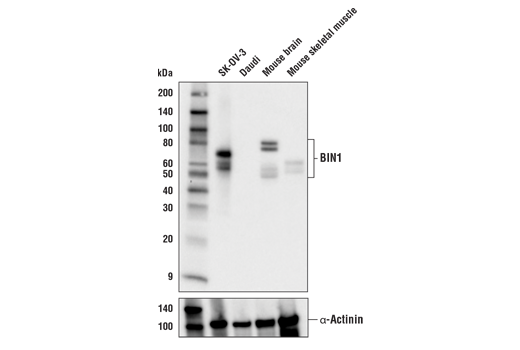 Western blot analysis of extracts from various cells and tissue extracts using BIN1 (E4A1P) Rabbit mAb (upper) and α-Actinin (D6F6) XP<sup>®</sup> Rabbit mAb #6487 (lower).