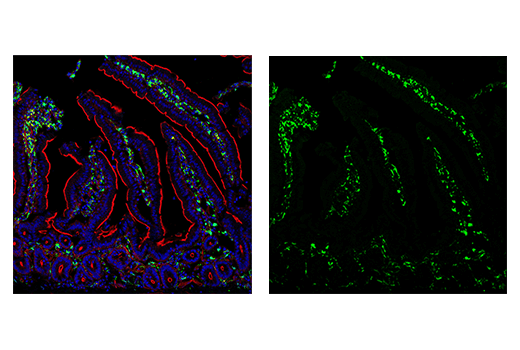 Image 20: Mouse Microglia Marker IF Antibody Sampler Kit
