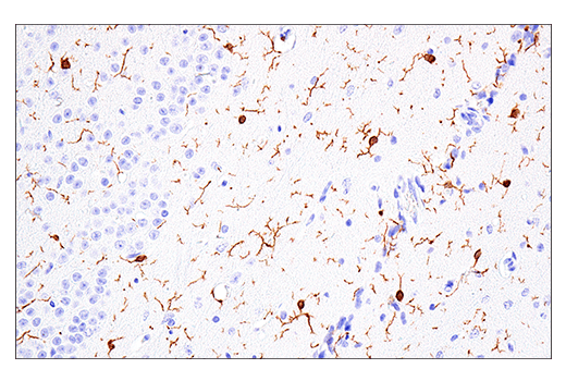Image 46: Mouse Microglia Marker IF Antibody Sampler Kit