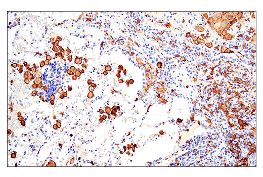 Image 40: Mouse Microglia Marker IF Antibody Sampler Kit