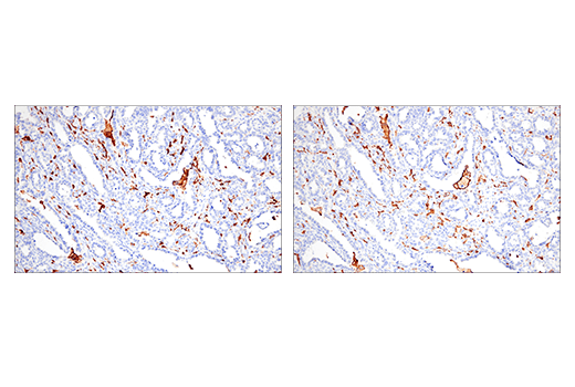 Image 43: Mouse Microglia Marker IF Antibody Sampler Kit