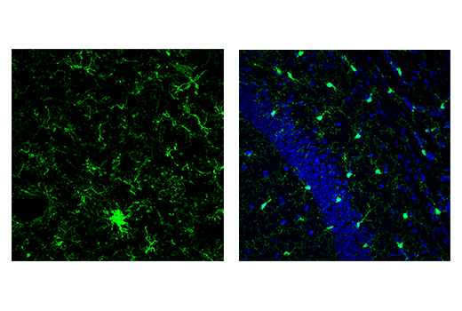 Image 11: Mouse Microglia Marker IF Antibody Sampler Kit
