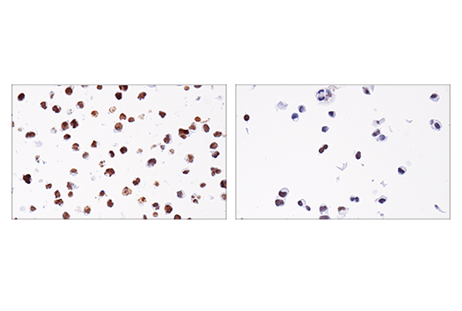 Immunohistochemical analysis of paraffin-embedded Daudi cell pellet (left, high-expressing) or HCC1419 cell pellet (right, low-expressing) using EED (E4L6E) XP<sup>®</sup> Rabbit mAb.