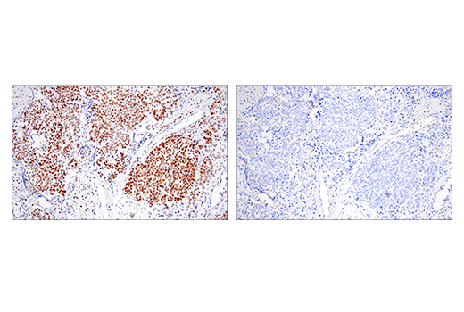Immunohistochemical analysis of paraffin-embedded human ovarian serous carcinoma using EED (E4L6E) XP<sup>®</sup> Rabbit mAb (left) compared to concentration-matched Rabbit (DA1E) mAb IgG XP<sup>®</sup> Isotype Control #3900 (right).