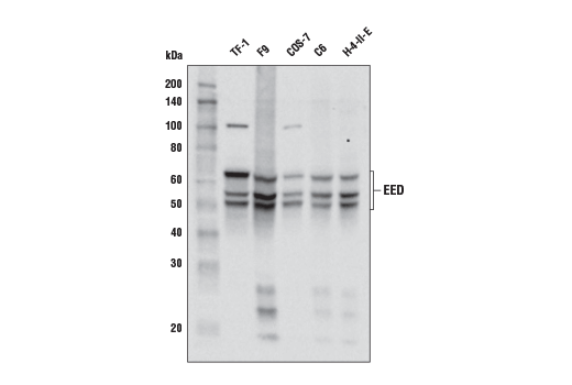 Western blot analysis of extracts from various cell lines using EED (E4L6E) XP<sup>®</sup> Rabbit mAb.
