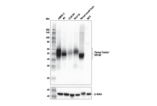 Western Blotting Image 1: Tissue Factor/CD142 (E2L3B) Rabbit mAb (Mouse Specific)