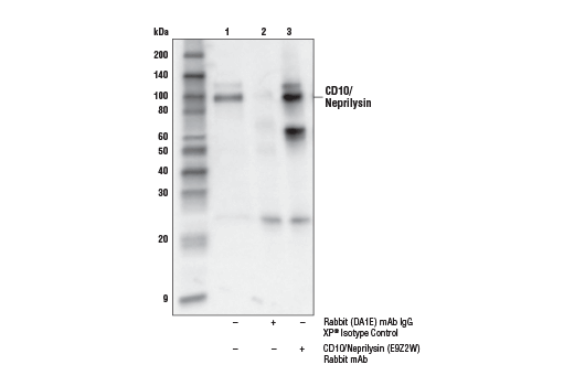 Immunoprecipitation Image 1: CD10/Neprilysin (E9Z2W) Rabbit mAb