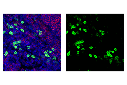 Immunofluorescence Image 1: Klrb1c/CD161c (E6Y9G) Rabbit mAb