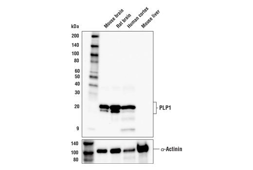 Image 11: Demyelinating Disease Targets Antibody Sampler Kit
