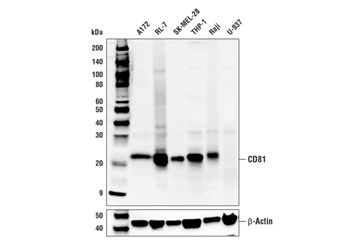 Western Blotting Image 1: CD81 (D3N2D) Rabbit mAb