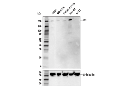 Western Blotting Image 1: Complement C3 Antibody