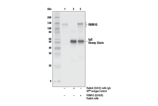 Immunoprecipitation Image 1: RBM10 (E5V5K) Rabbit mAb